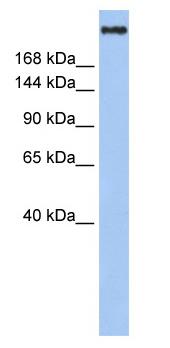 Western blot - Anti-KAT3A / CBP antibody (ab83857)