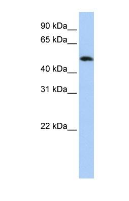 Western blot - Anti-FAM175B antibody (ab83860)