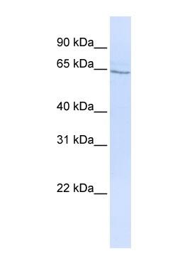 Western blot - Anti-GLP2R antibody (ab83861)