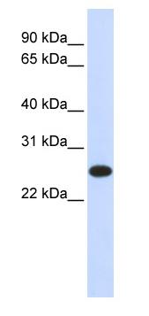 Western blot - Anti-IL33 antibody (ab83873)