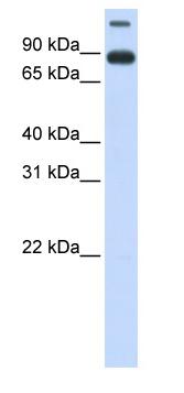 Western blot - Anti-NDC1 antibody (ab83876)