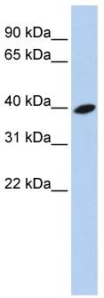 Western blot - Anti-ARL13B antibody (ab83879)