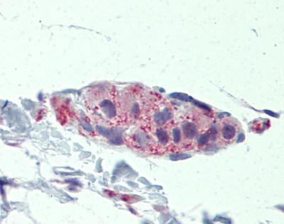 Immunohistochemistry (Formalin/PFA-fixed paraffin-embedded sections) - Anti-Tankyrase antibody (ab83978)