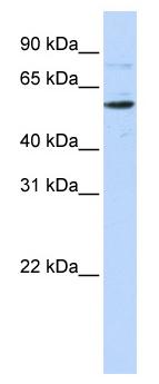 Western blot - Anti-CDS1 antibody (ab84019)