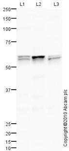 Western blot - Anti-ANGPTL3 antibody (ab84035)