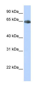 Western blot - Anti-Noradrenaline transporter antibody (ab84057)