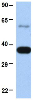 Western blot - Anti-E3 ubiquitin-protein ligase MUL1 antibody (ab84067)