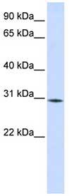 Western blot - Anti-RBM7 antibody (ab84116)