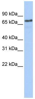Western blot - Anti-Axotrophin antibody (ab84130)