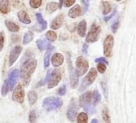 Immunohistochemistry (Formalin/PFA-fixed paraffin-embedded sections) - Anti-RBM14 antibody (ab84133)
