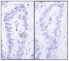 Immunohistochemistry (Formalin/PFA-fixed paraffin-embedded sections) - Anti-MCM2 (phospho S27) antibody (ab84142)