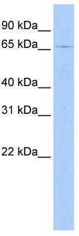Western blot - Anti-eRF3B/GSPT2 antibody (ab84180)