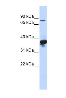 Western blot - Anti-LONRF2 antibody (ab84291)
