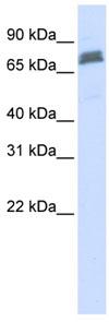 Western blot - Anti-TRIM45 antibody (ab84303)