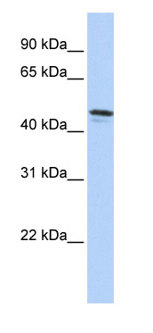 Western blot - Anti-Diffuse panbronchiolitis critical region protein 1 antibody (ab84306)