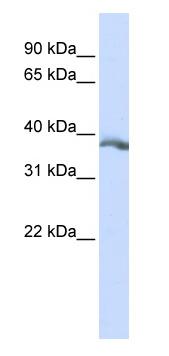 Western blot - Anti-EDA antibody (ab84311)