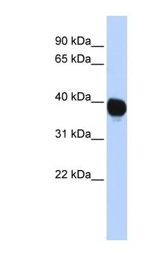 Western blot - Anti-TPST2 antibody (ab84334)