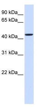 Western blot - Anti-NIPA2 antibody (ab84343)