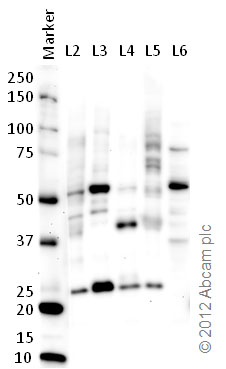 Western blot - Anti-MNK2 antibody (ab84345)