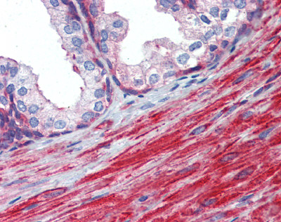 Immunohistochemistry (Formalin/PFA-fixed paraffin-embedded sections) - Anti-MYL6 antibody (ab84349)