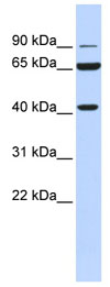 Western blot - Anti-H6PD antibody (ab84353)