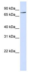 Western blot - Anti-RIPK4 antibody (ab84365)