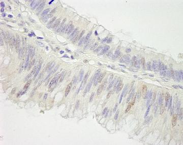 Immunohistochemistry (Formalin/PFA-fixed paraffin-embedded sections) - Anti-Cullin 3 antibody (ab84458)
