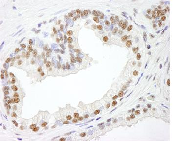 Immunohistochemistry (Formalin/PFA-fixed paraffin-embedded sections) - Anti-RBM25 antibody (ab84460)