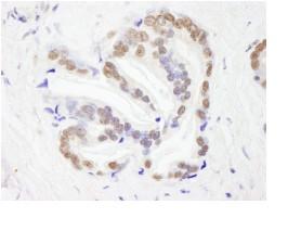 Immunohistochemistry (Formalin/PFA-fixed paraffin-embedded sections) - Anti-RBM26 antibody (ab84466)