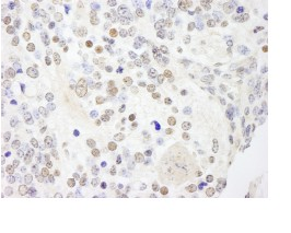 Immunohistochemistry (Formalin/PFA-fixed paraffin-embedded sections) - Anti-ANKS3 antibody (ab84480)
