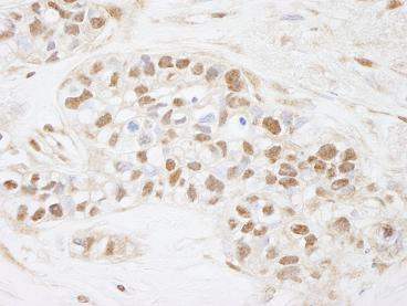 Immunohistochemistry (Formalin/PFA-fixed paraffin-embedded sections) - Anti-Cdc25C antibody (ab84485)
