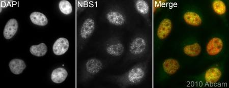 Immunocytochemistry/ Immunofluorescence - Anti-p95 NBS1 antibody (ab84488)