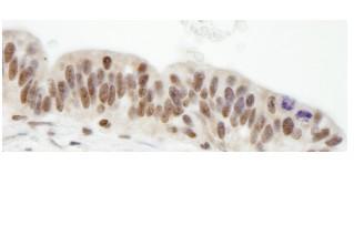 Immunohistochemistry (Formalin/PFA-fixed paraffin-embedded sections) - Anti-ZHX1 antibody (ab84506)
