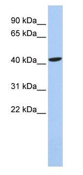 Western blot - Anti-Lhx4 antibody (ab84519)