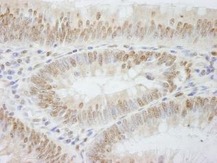 Immunohistochemistry (Formalin/PFA-fixed paraffin-embedded sections) - Anti-DNA Polymerase epsilon antibody (ab84532)