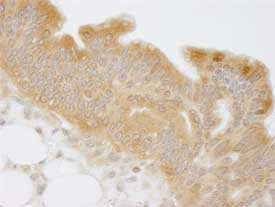 Immunohistochemistry (Formalin/PFA-fixed paraffin-embedded sections) - Anti-N myc interactor antibody (ab84553)