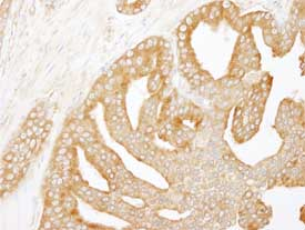 Immunohistochemistry (Formalin/PFA-fixed paraffin-embedded sections) - Anti-CORO1B antibody (ab84558)