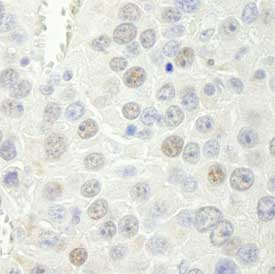 Immunohistochemistry (Formalin/PFA-fixed paraffin-embedded sections) - Anti-RTF1 antibody (ab84564)