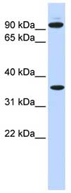 Western blot - Anti-Ext2 antibody (ab84582)