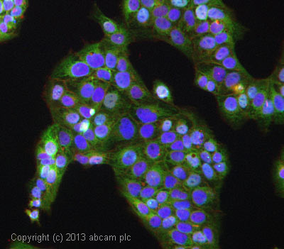 Immunocytochemistry/ Immunofluorescence - Anti-SPTLC1 antibody (ab84585)