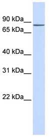Western blot - Anti-ZNF420 antibody (ab84618)
