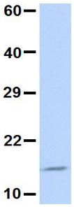 Western blot - Anti-UBE2D3 antibody (ab84640)