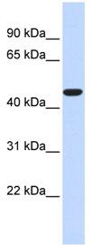 Western blot - Anti-acyl-CoA Thioesterase 2 antibody (ab84644)