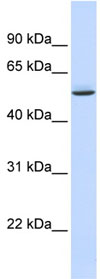 Western blot - Anti-GTPBP10 antibody (ab84648)