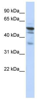 Western blot - Anti-NMT1 antibody (ab84666)