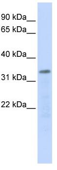 Western blot - Anti-POLR3F antibody (ab84667)