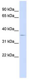Western blot - Anti-TRIB2 antibody (ab84683)