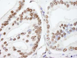 Immunohistochemistry (Formalin/PFA-fixed paraffin-embedded sections) - Anti-NUCKS1 antibody (ab84710)