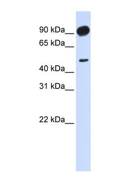 Western blot - Anti-Adducin 2 antibody (ab84736)