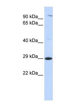 Western blot - Anti-TSPAN2 antibody (ab84738)